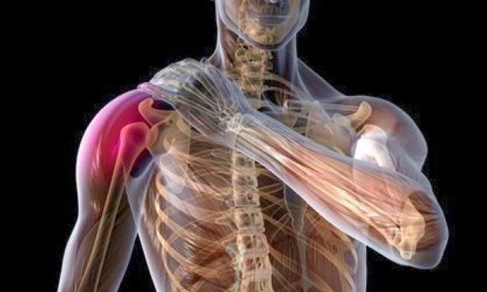 omos arthroplastiki Αρθροπλαστικής ώμου Αρθροπλαστική ώμου omos arthroplastiki-eksarthrima_wmos