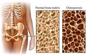 osteoporosi_οστεοπόρωση-osteopwrosi-οστεοπόρωση-οστεοπόρωση-osteopwrosi-οστεοπόρωση-οστεοπόρωση-osteopwrosi-οστεοπόρωση-