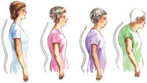 osteoporosi_οστεοπόρωση-osteopwrosi-οστεοπόρωση-οστεοπόρωση-osteopwrosi-οστεοπόρωση-οστεοπόρωση-osteopwrosi-οστεοπόρωση-οστεοπόρωση-osteopwrosi-οστεοπόρωση-οστεοπόρωση-osteopwrosi-οστεοπόρωση-οστεοπόρωση-osteopwrosi-οστεοπόρωση-οστεοπόρωση-osteopwrosi-οστεοπόρωση-οστεοπόρωση-osteopwrosi-οστεοπόρωση-οστεοπόρωση-osteopwrosi-οστεοπόρωση-